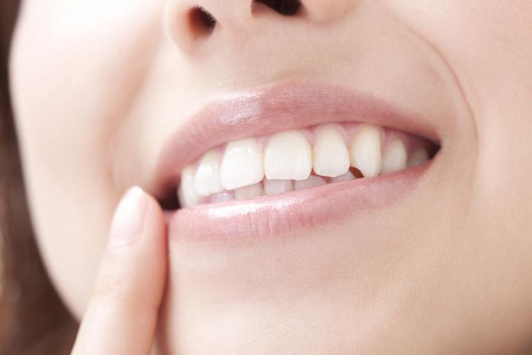 白い歯で、笑顔に自信を。