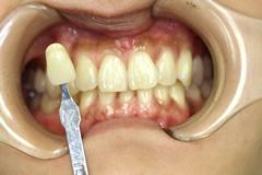歯の状態のチェック